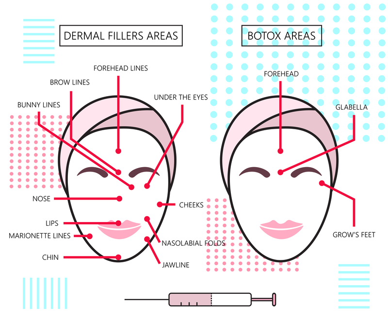 facial-injections-explained
