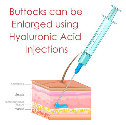 buttock-injections-diagram