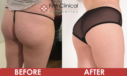 lucy-before-&-after-buttock