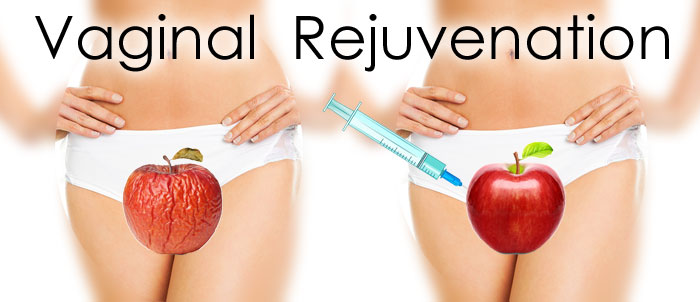 Who gets vaginal rejuvenation